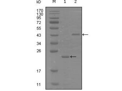 EphA8 Monoclonal Antibody (9A12D8)