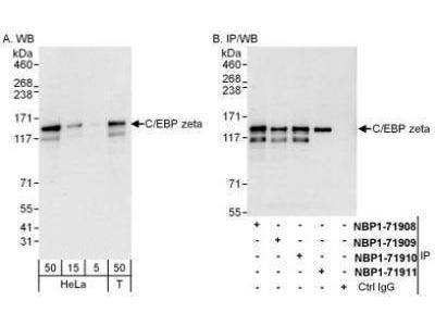 Rabbit Polyclonal CBF2 Antibody