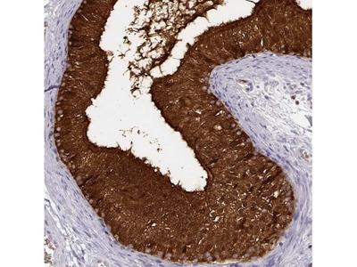 Purine Nucleoside Phosphorylase / PNP Antibody