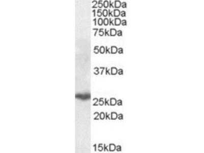 PSMB10 / MECL1 Antibody
