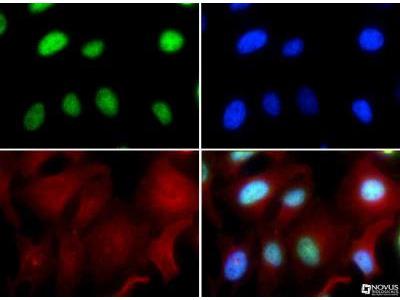 Rabbit Polyclonal RUNX2 / CBFA1 Antibody