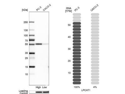 LPCAT1 Antibody