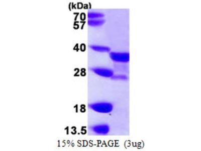 NAT1 Protein