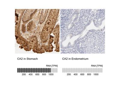 Anti-CA2 Antibody