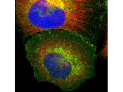 beta 2-Microglobulin Antibody