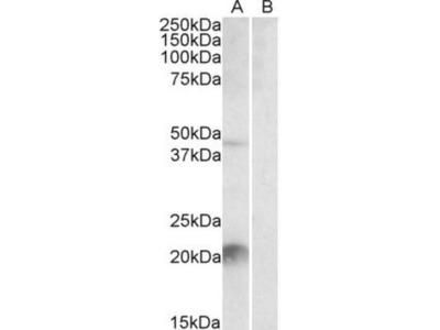 Goat Polyclonal Kallikrein 6 / Neurosin Antibody