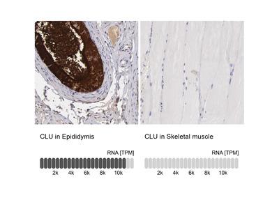 Anti-CLU Antibody
