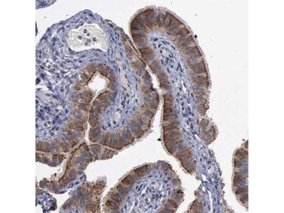 Anti-CRKL Antibody