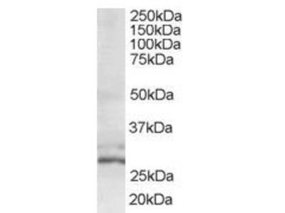 TIP30 Polyclonal Antibody