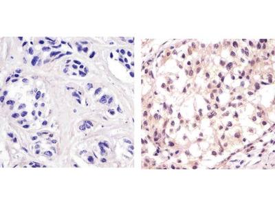 p53 Monoclonal Antibody (PAb 122)