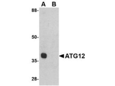 ATG12 Peptide