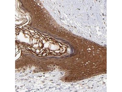 TNRC6B Antibody