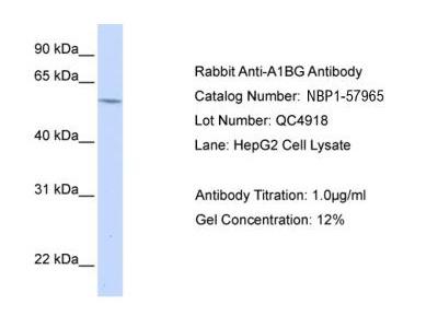 Rabbit Polyclonal alpha 1B-Glycoprotein Antibody