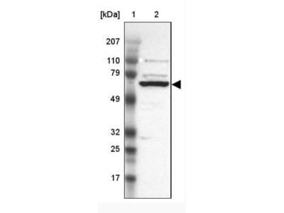GRK3 Antibody