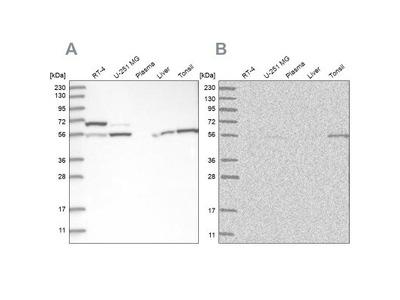 Protein phosphatase 1F Antibody