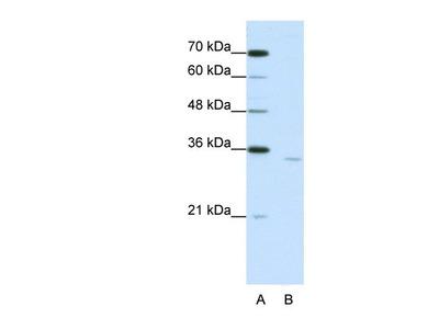 Rabbit Polyclonal CPEB2 Antibody