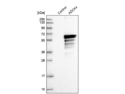 ADCK4 Antibody