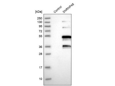 SNRNP48 Antibody