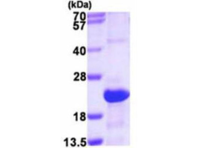 SRGN Recombinant Protein