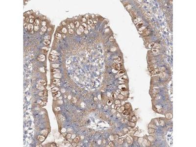 ZZEF1 Antibody