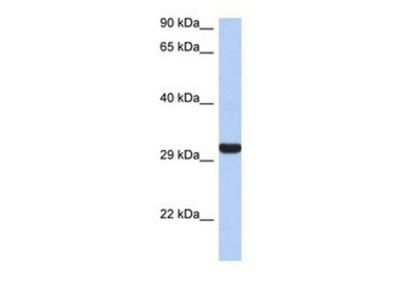 Granzyme K Antibody