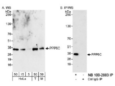 PPP6C Antibody