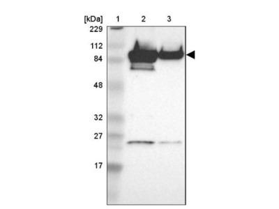 AKAP95 / AKAP8 Antibody