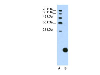 Ribosomal Protein S29 Antibody