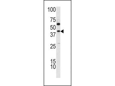 TDG Polyclonal Antibody