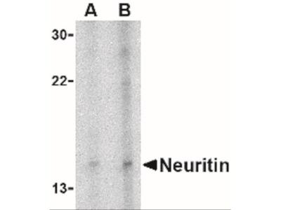 Rabbit Polyclonal Neuritin Antibody