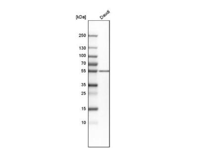 PKA 2 beta Antibody