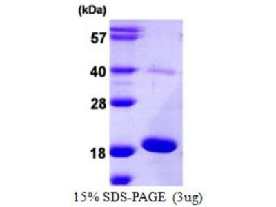 AG-3 / AGR3 Recombinant Protein