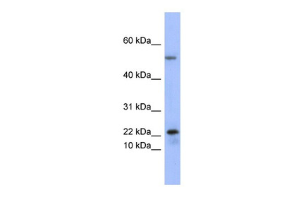 Secretory phospholipase A2 Type V Antibody