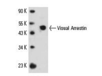 Mouse Monoclonal S-arrestin Antibody
