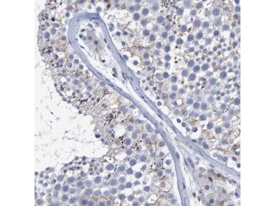 PROCA1 Antibody
