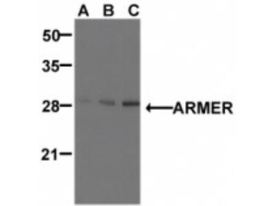 Rabbit Polyclonal ARMER Antibody