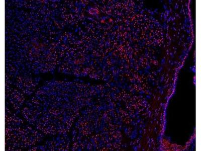 PRICKLE1 Antibody