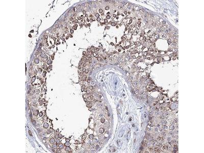 PUS3 Antibody