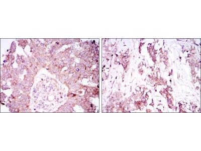 Ataxin 1 Antibody (2F5)