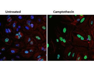 p53 Monoclonal Antibody (SP5)