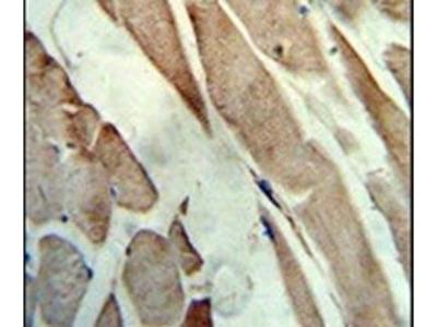Creatine Kinase MB Polyclonal Antibody