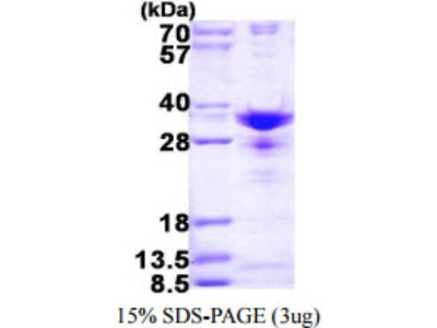 SNRPA1 Recombinant Protein