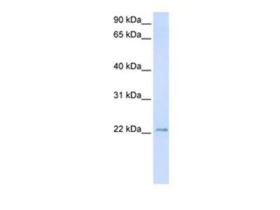 TMEM9 Antibody