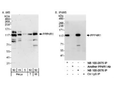 PPP4R1 Antibody