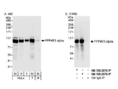 Smek1 Antibody
