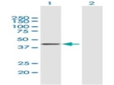 Phospholipase B1 Antibody