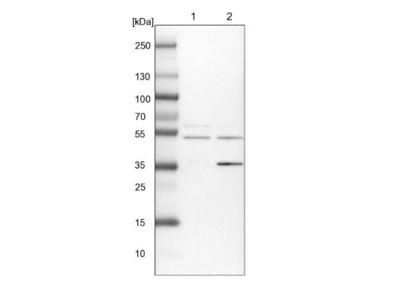 ACTR6 Antibody