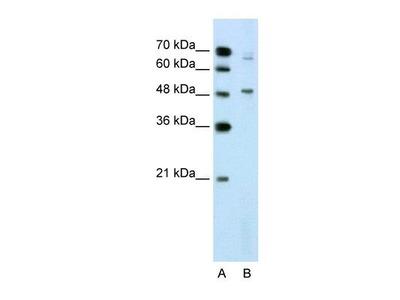 Rabbit Polyclonal DAX1 / NR0B1 Antibody
