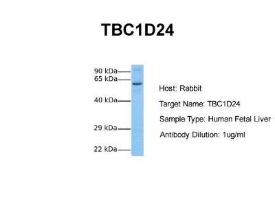 TBC1D24 Antibody