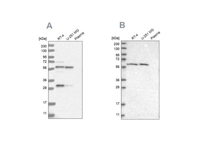 Phenylalanine Hydroxylase Antibody